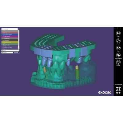 EXOCAD Software Model Creator Module