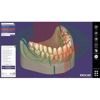 EXOCAD Software Full Denture Module