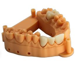 Denture Example